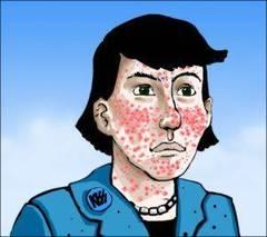 Granos de acné en la piel de la cara