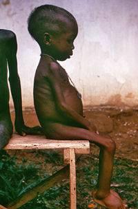 Valoración antropométrica en  niños desnutridos