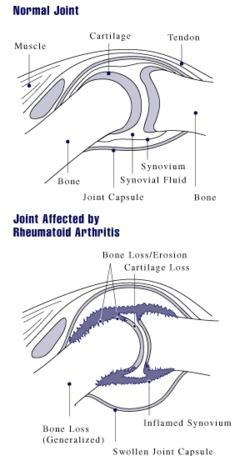 Dieta para la artritis reumatoidea